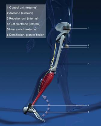 ActiGait implanted muscle stimulator improves walking for stroke patients