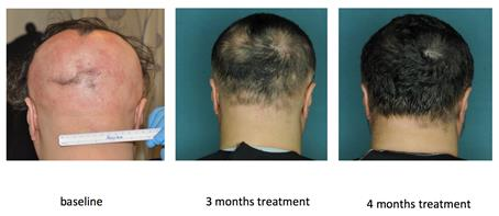 Restored hair growth in a research subject with alopecia areata over 4 months