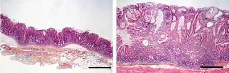 Microscope view of cells from the anterior (left - with Botox) and posterior (right) halves of the stomach of mice with cancer.