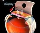 Diagram showing eyetooth implanted in the eye as a base for holding a new lens