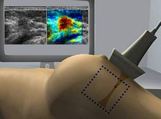 The new ultrasound scanner designed by Plexus for SuperSonic Imagine has the potential to speed up cancer diagnosis.